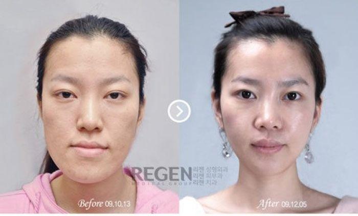 Пластическая хирургия фотографии до и после центр пластической хирургии, косметологии и корекции веса