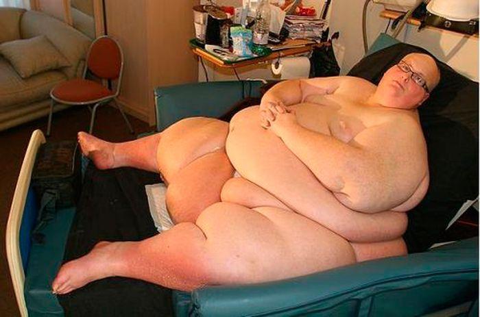 Самый толстый человек в мире и как он похудел